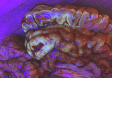 brain fluorescence caused by B1 deficiency